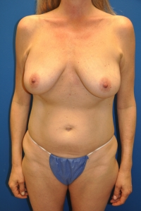 BRCA2 patient with left breast cancer and drooping breasts following previous pregnancy