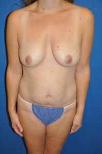 BRCA1 gene mutation and left breast DCIS