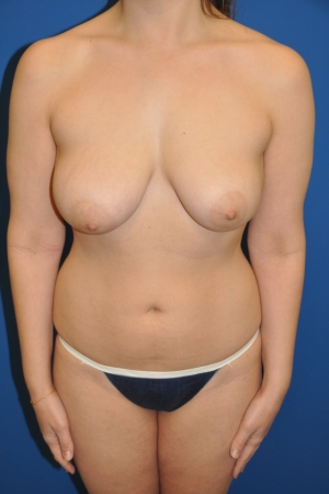 BRCA patient with family history of breast cancer and early drooping of the breasts
