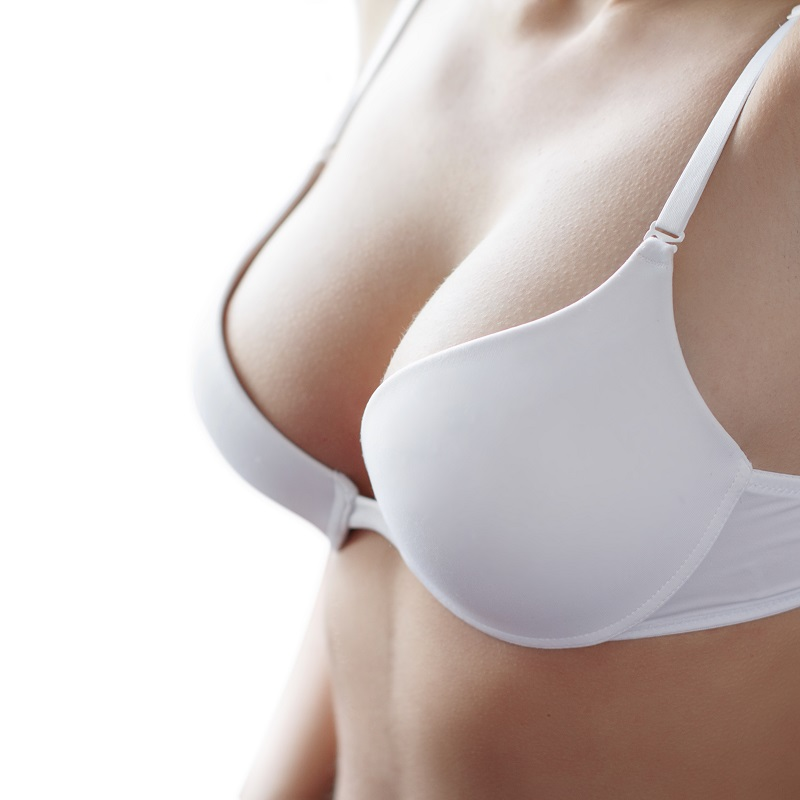 Breast augmentation revision patient at The Renaissance Medical Center for Aesthetic Surgery, Inc
