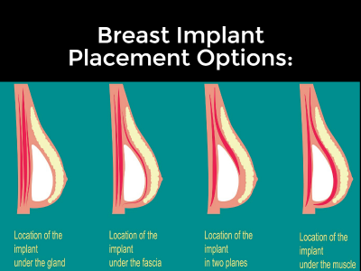 Breast Augmentation | Breast Implant Placement | Plastic Surgery