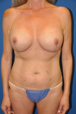 Following nipple-sparing mastectomies and full projection cohesive gel implant reconstructions using cosmetic breast lift-type incisions