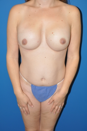 After nipple-sparing mastectomies and reconstructions with full-projections cohesive gel implants, AlloDerm, and fat grafting